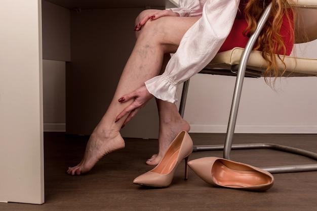 여성 다리에 통증이있는 정맥류 및 거미 정맥