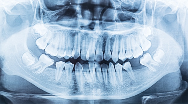 Panoramic dental x-ray of a mouth left and right side.