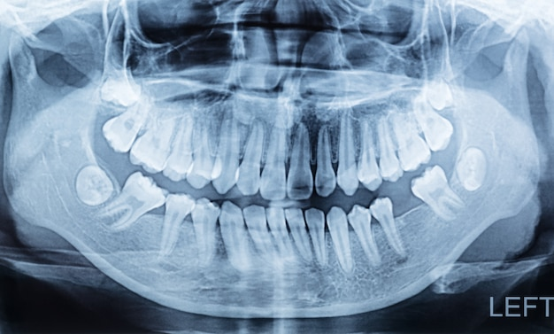 Panoramic dental x-ray of a mouth lift and right side.