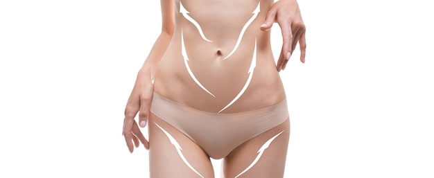 Panoramic image of a female belly with drawn arrows. plastic surgery concept. liposuction. mixed media