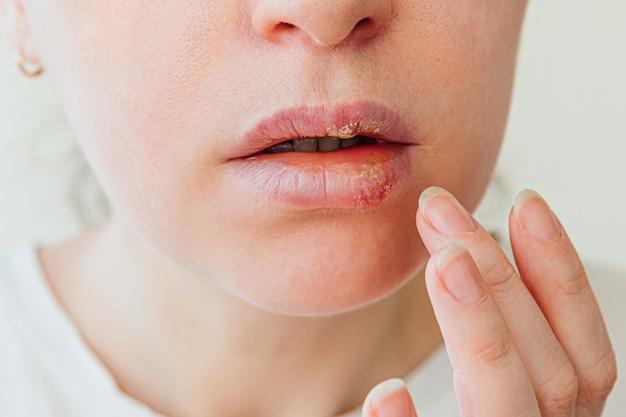 헤르페스와 입술에 통증을 만지는 손가락으로 젊은 여성 얼굴의 일부는 미용 피부과 개념에 영향을 미쳤습니다.