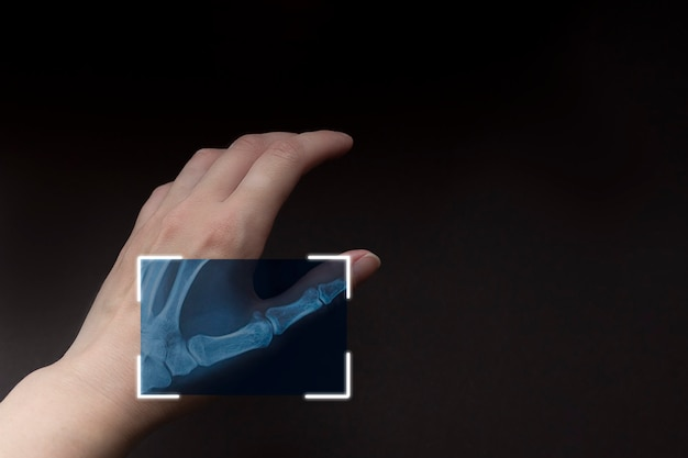 Partial x-ray of hand on brown background, scanning hand, futuristic technology with biometric. cyber security network.