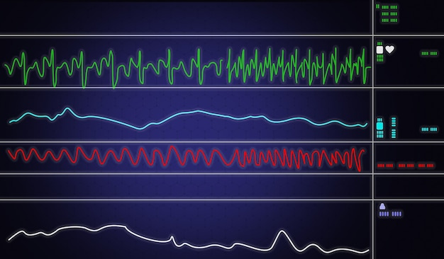 Patient monitor showing vital signs ecg and ekg. vector illustration.