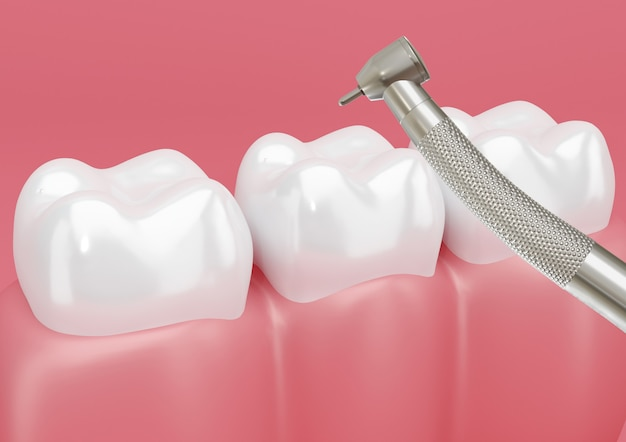 Patient's tooth treated with dental drill to remove cavities.
