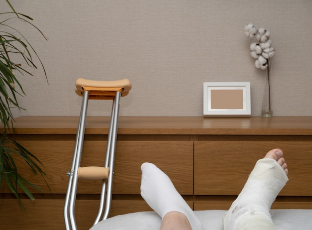 A patient with a cast with ankle fracture there are crutches at the dresser
