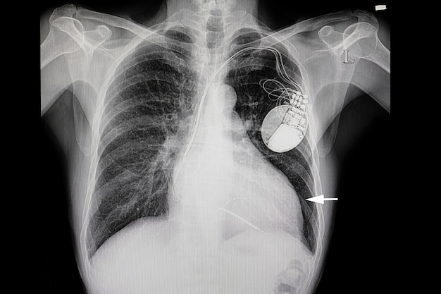 A patient with heart enlargement and a cardiac pacemaker