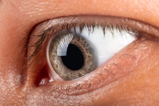Пациент с крупным планом глаза кератоконус, диагноз дистрофии роговицы.