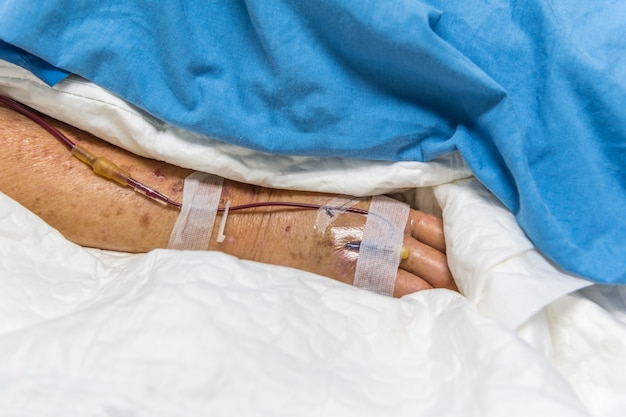 Patient with saline intravenous in the hospital