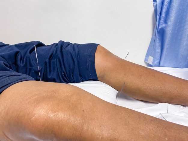 Patients undergoing acupuncture on the body in the hostipal and clinic