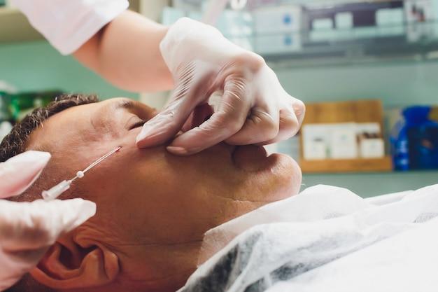顔を持ち上げるpdo縫合操作、顔を持ち上げる手術の手順のクローズアップ。新しいスレッドリフト、novathreads、silhouette instaliftメンズバッグの革新的な技術が目の下にあります。