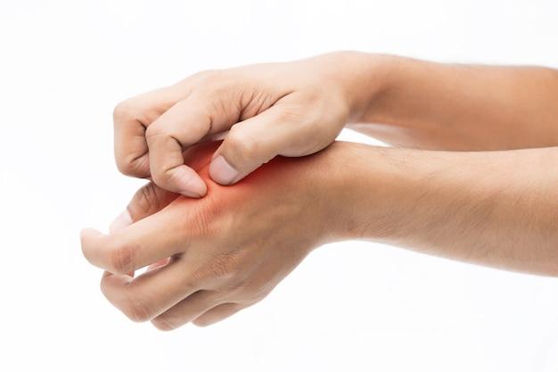 사람들은 손으로 가려움증, 가려움증, 팔, 건강 관리 및 의학 개념.