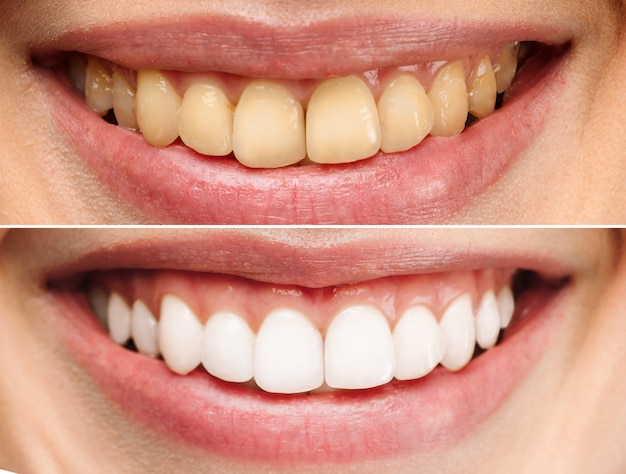 Perfect healthy teeth smile of a woman teeth whitening dental clinic patient image symbolizes oral