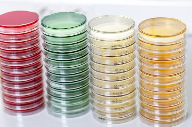 실험실 테이블에 페트리 접시
