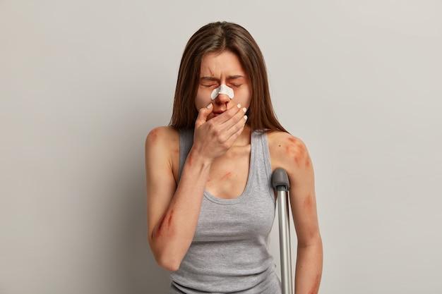 Фотография избитой кем-то женщины, ставшей жертвой насилия или изнасилования, у нее кровотечение из носа, много синяков на теле и ушибов, держит руку на лице, закрывает глаза от боли, стоит с костылем в помещении