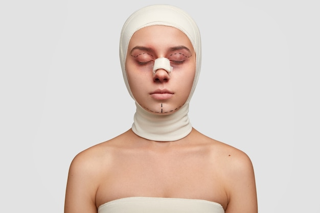 Photo of young female has contour plastic, gets ready for cosmetic surgery, has doted lines on eyelids and chin, bruises near eyes, wrapped in medical bandages