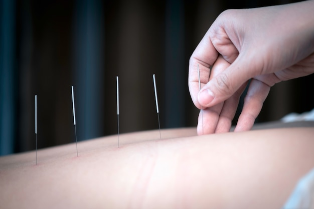 The physiotherapist is doing acupuncture on the back of a female patient