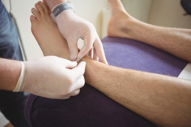 Физиотерапевт выполняет сухую иглу на ноге пациента