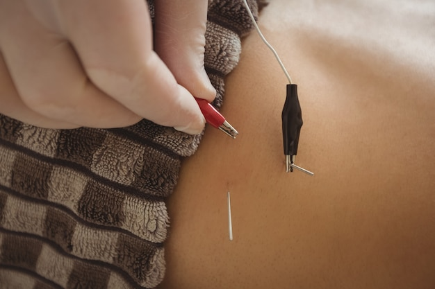 Physiotherapist performing electro dry needling on patient