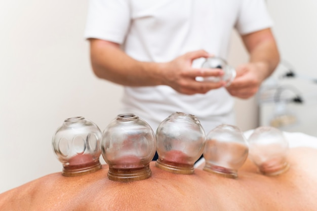 Physiotherapist using cupping method on patient's back