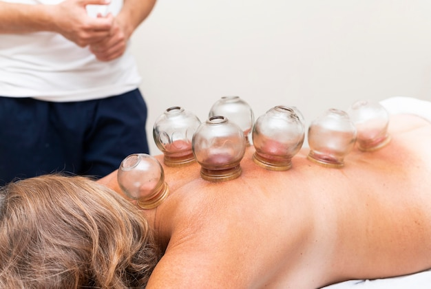 Physiotherapist using cupping method on woman's back