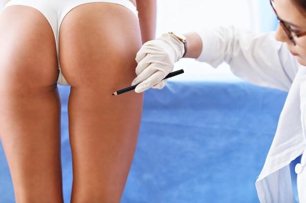 患者の体にマークを付ける形成外科医の写真