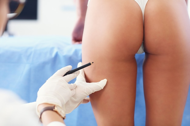 Picture of plastic plastic surgeon making marks on patient body