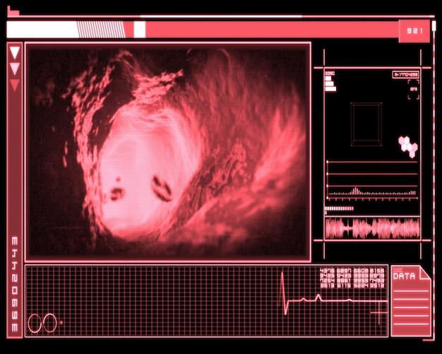 Розовый и черный цифровой интерфейс, показывающий интерьер вены
