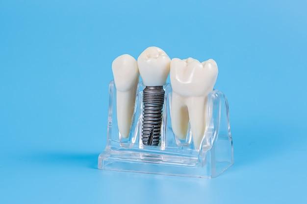 Plastic dental crowns, imitation of a dental prosthesis of a dental bridge for three teeth with a metal screw implant.
