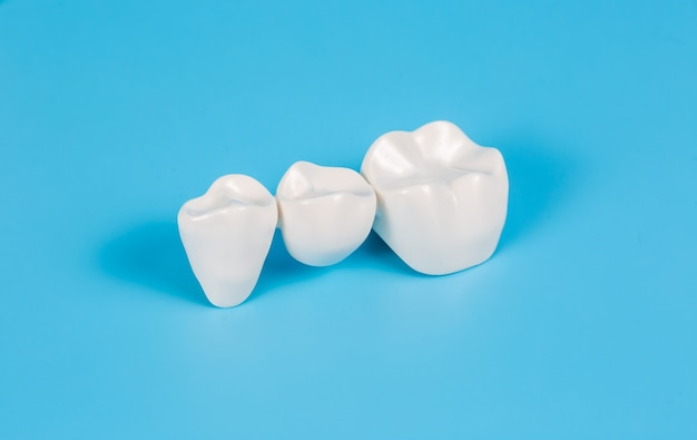 プラスチック製の歯冠、青い背景の3本の歯のための歯科用ブリッジの歯科補綴物の模倣。