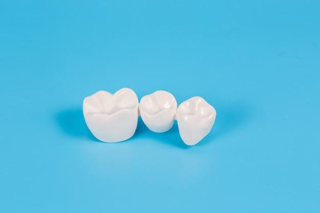 プラスチック製の歯冠、3本の歯のための歯科用ブリッジの歯科補綴物の模倣。歯科医と患者のための視覚補助。