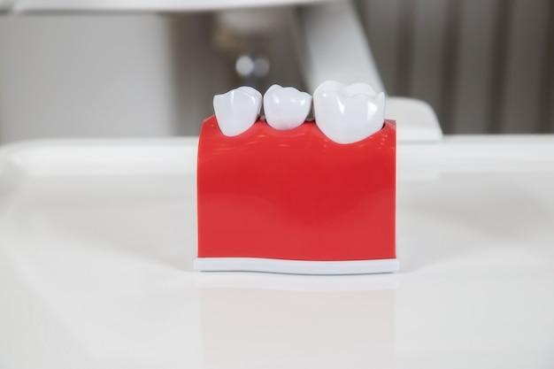 プラスチック製の歯冠、金属製のスクリューインプラントを使用した3本の歯用の歯科用ブリッジの歯科補綴物の模倣。