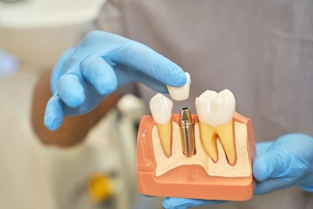 Стоматолог показывает пластиковую опору зубного имплантата