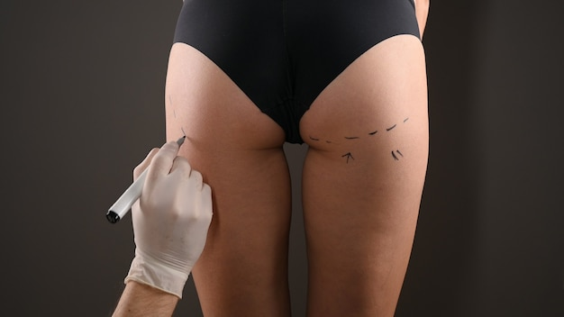 Plastic surgeon marking woman's body for surgery