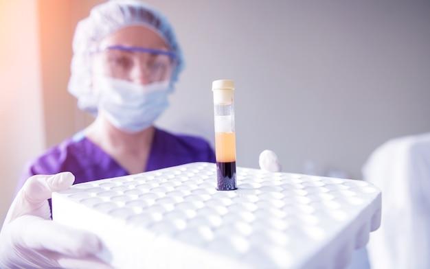 多血小板血漿製剤。手に血漿を含むチューブ