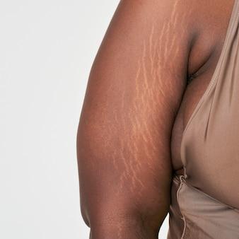 プラスサイズの女性の腕の白いストレッチマークボディポジティブシュート