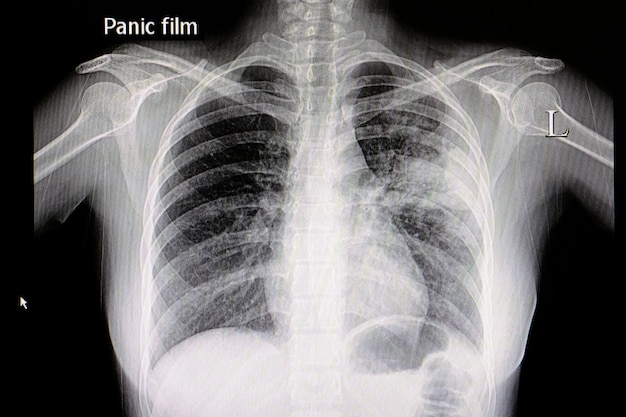 Pneumonia chest film
