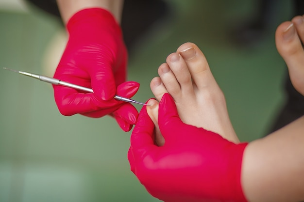 Podiatrist treating toenail fungus. podology treatment.