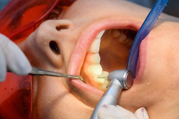 여성 치과 의사와 치과 진료소에서 백인 소녀의 치아 교정기를 제거하는 과정에서 치아 교정기에서 치아 연마