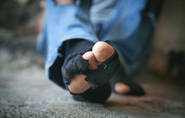 Poor feets of a caucasian homeless man.