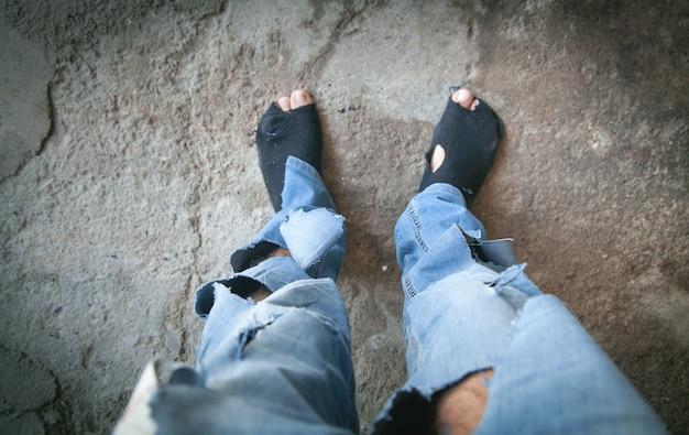 白人のホームレスの男性の足が悪い。
