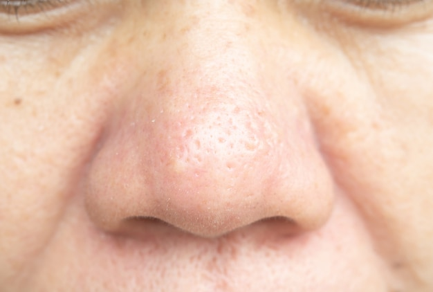 Pores on the nose and skin problems are not smooth.