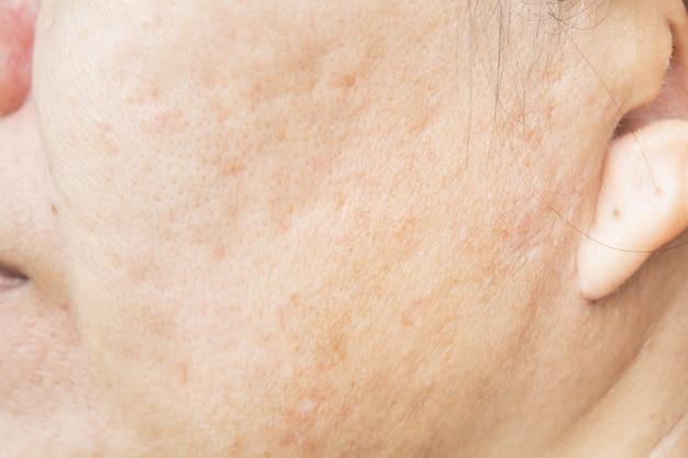 女性の顔の毛穴