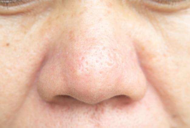 鼻孔や皮膚の問題は滑らかではありません。
