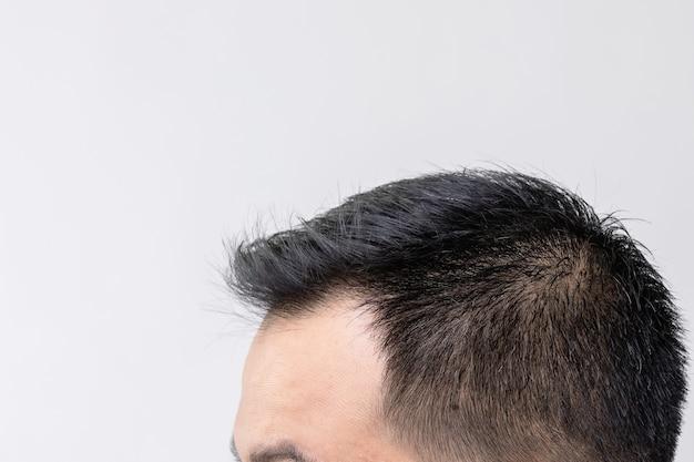 Портрет азиатского мужчины с чувством беспокойства и прикосновением к его голове, чтобы показать лысину или голую проблему. студийная съемка с копией пространства с серой стеной
