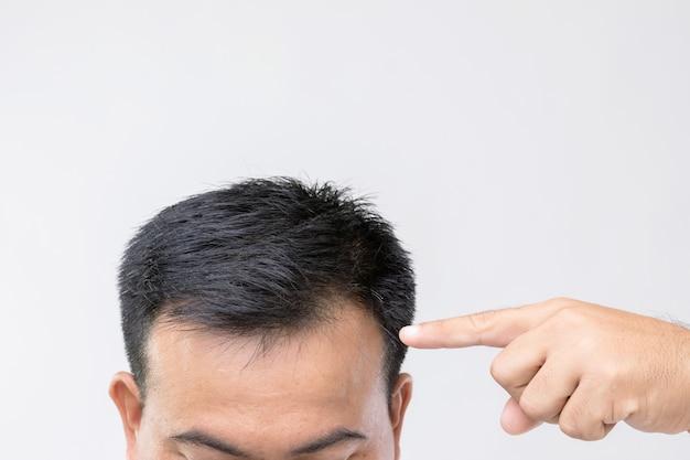 Портрет азиатского мужчины с чувством беспокойства и прикосновением к его голове, чтобы показать лысую голову или голую проблему