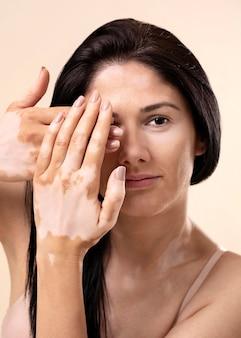 Portrait of beautiful woman with vitiligo