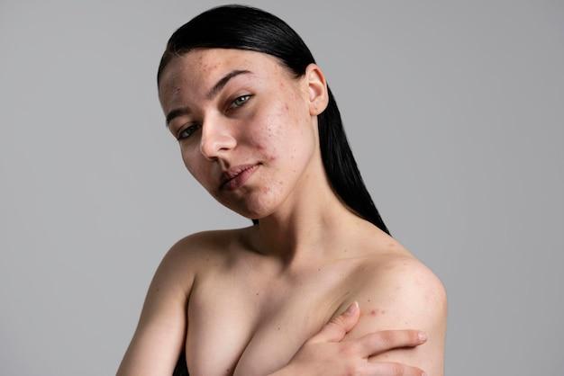Ritratto di bella giovane donna con l'acne