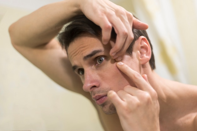 Portrait of man popping a pimple