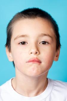 青い背景に軽度の口囲皮膚炎を持つ悲しい少年の肖像画