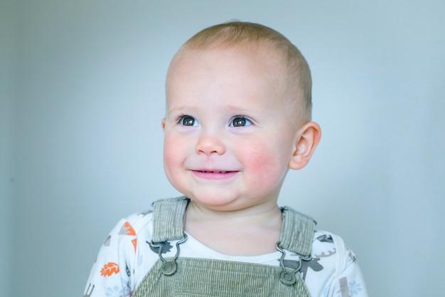 Портрет улыбающегося ребенка с диатезом, аллергией, красными щеками, сухой кожей, раздражением кожи